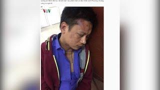 Bệnh viện phụ sản Hà Nội thông tin về việc bảo vệ bệnh viện đánh trọng thương người nhà bệnh nhân