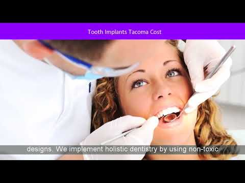 Tooth Implants Tacoma Cost