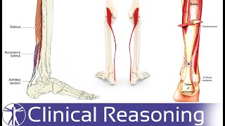 Achilles tendinosis and tendinitis: Signs, symptoms and treatment options.