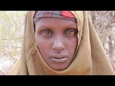 اللاجئون الصومال مجاعة - Somalia Starvation Refugee