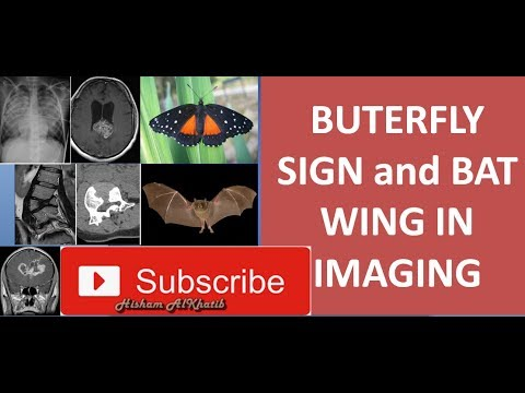 BUTTERFLY SIGN and BAT WING IN IMAGING #MedicalRadiology