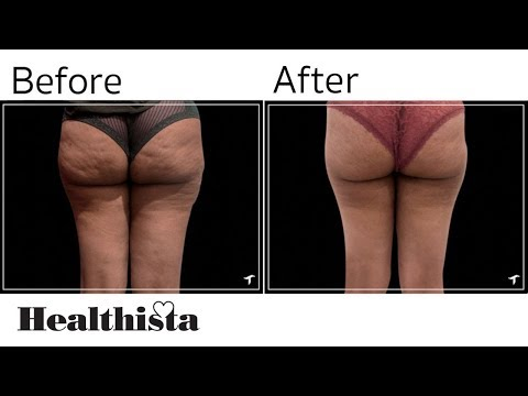 The New Cellulite Fix That Changed My Bum Healthista
