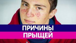 видео Подростки: как решить проблемы кожи