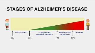 (visit: http://www.uctv.tv) dr. geroges naasan explores the principal clinical syndromes of alzheimer's disease: memory, visual, language and frontal/executi...