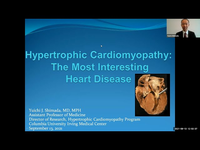 Hypertrophic Cardiomyopathy: The Most Interesting Heart Disease