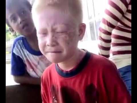 Bocah Albino yang Jago Pantun dari Ambon