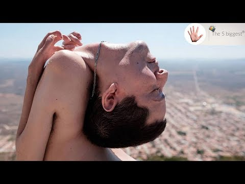 Man Born With Head Upside Down Will Make You See Life Differently Body Bizarre Youtube