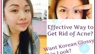 ~Acne Be Gone! Effective Way To Get Rid of your Acne!