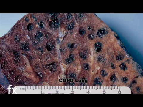 Medical Cannabis & its Impact on Human Health – Documentary – Marijuana as Medicine