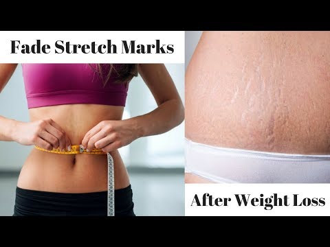 Stretch Marks After Weight Loss: How To Fade Them Fast!