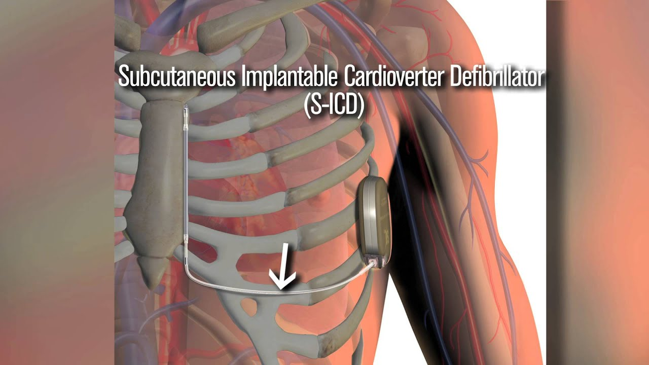 What is ICD in medical terms