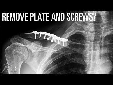 Should you have your plate and screws removed after your