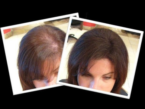 How To Grow New Hair Naturally Within A Month Youtube