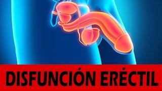Disfuncion erectil tratamiento casero - Remedios caseros para la disfunción eréctil