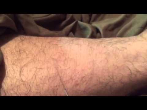 Myotherapy needling