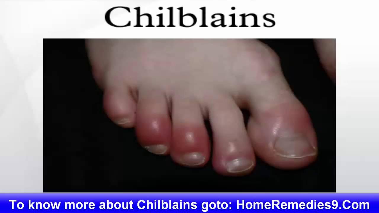 how to avoid chilblains on feet