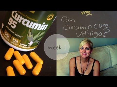 Vitiligo Repigmentation Experiment: Curcumin June 2013 Week 1