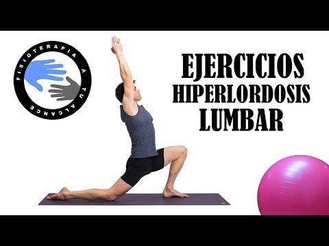 Hiperlordosis lumbar, ejercicios para corregir la postura