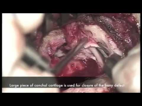 surgical repair of brain herniation into middle ear and mastoid