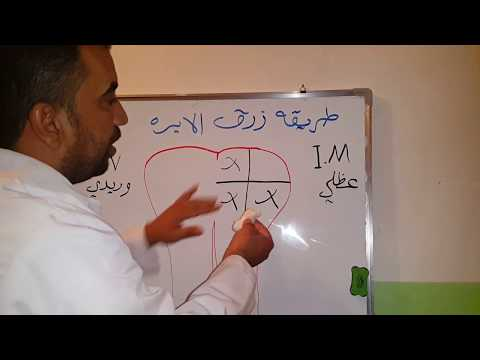 طريقه زرق الابره بالشرح والتفصيل