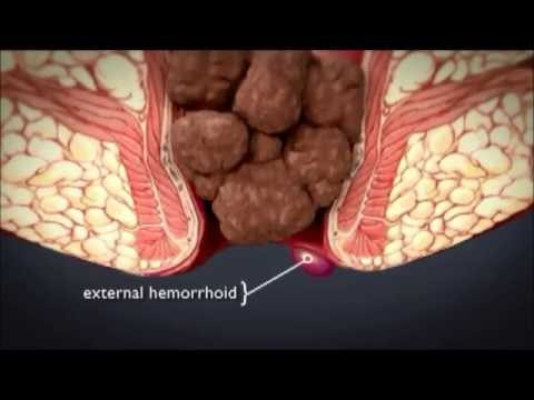 HEMORRHOiDS | What are hemorrhoids ? What is the treatment for hemorrhoids ?