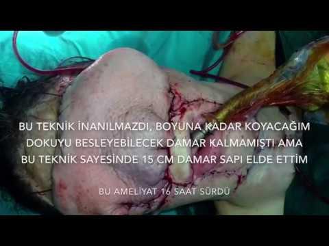 Kendi Dokusundan Yüz Nakli -3- | Doç. Dr. Süleyman Taş