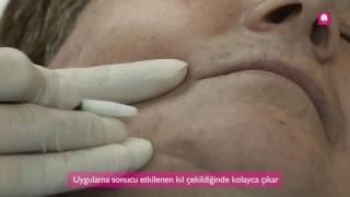 İğneli Epilasyon Antalya - DK Klinik