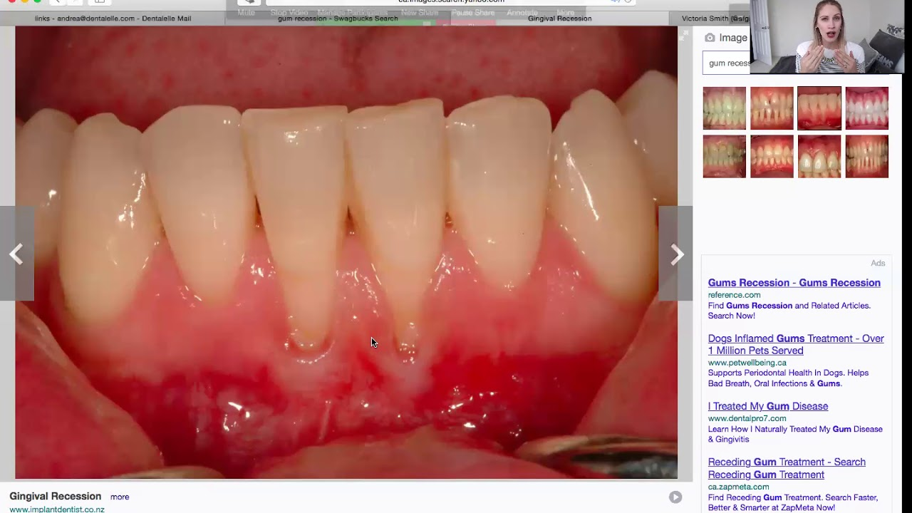 How To Explain Gingival Recession To Your Patients Youtube