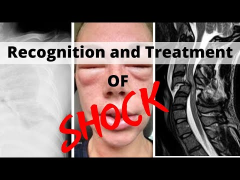 Recognition And Treatment Of Shock