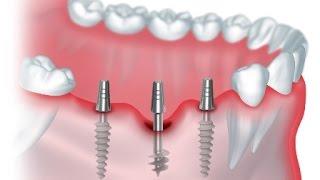 Зубные импланты - современная технология(, 2017-04-05T07:22:59.000Z)