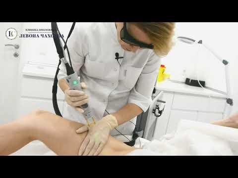 Как делается лазерная эпиляция бикини видео