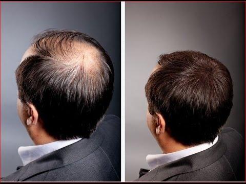 Лечение облысения, лечения алопеции - центр лечения волос