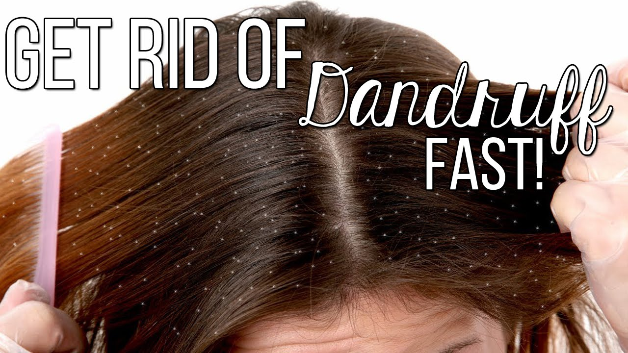 How To Get Rid Of Dandruff FAST!! Only 2 Ingredients
