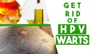 How to Get Rid of HPV Warts at Home - 3 Tips You MUST Know