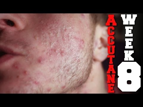 Joints, Depression and Lifting on Accutane (Week 8)