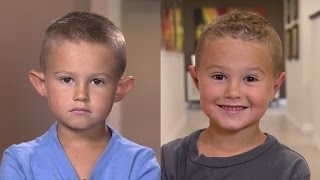 Parents Allow 6-Year-Old Boy with Big Ears to Get Plastic Surgery thumbnail