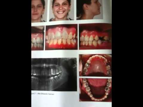 Missing teeth and braces youtube solutioingenieria Gallery