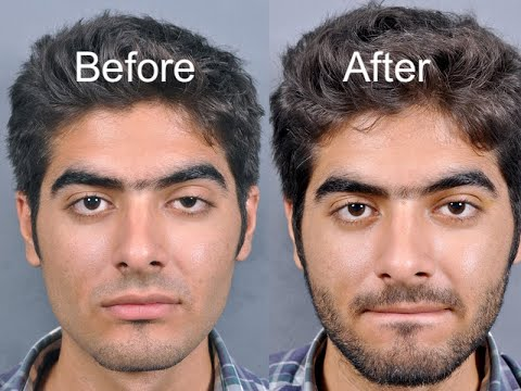 Bloodless Ptosis Repair Levator Resection Surgery - YouTube - ptosis surgery