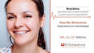 Brackets: ¿cuánto dura el tratamiento? ¿cuánto cuesta? ¿qué tipos hay?