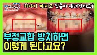 2-33. 치아교정 안하면 이렇게 된다고❓ 부작용 오기…