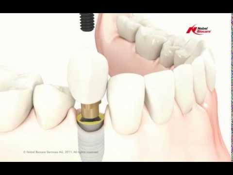 Single Dental Implant Placement at Lumiere Dental Centre - Sydney CBD Dentist