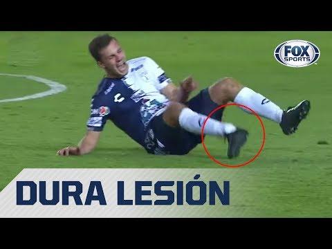 La grave lesión de Eugenio Pizzuto en el León vs. Pachuca