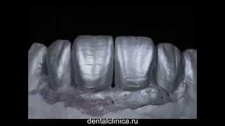 Презентация красивой улыбки Керамика металлокерамика коронки зубов Протезирование(Клиника эстетической стоматологии European Clinic of Aesthetic Dentistry Eiffel Medical Center Dentist http://dentalclinica.ru и имплантации в Будап..., 2014-04-04T19:16:01.000Z)