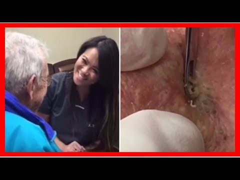 Breaking News | Dr pimple popper's favorite video ever will make you cry and gag at the same time
