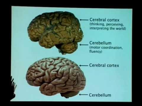 """Normal and Abnormal Brain Development in Children"" -- Ronald Yeo"