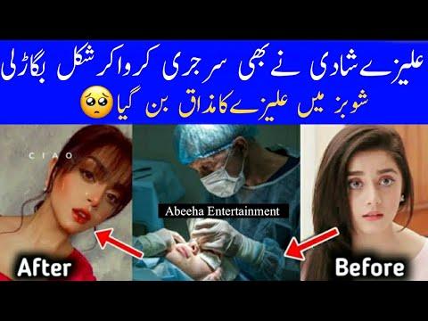 Alizeh Sha's Plastc Surgery Exposed||Abeeha Entertainment ||AE