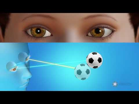 What is strabismus?