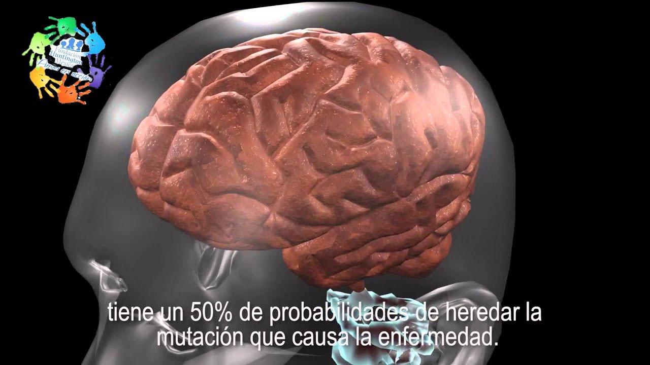 ¿Que es la enfermedad de Huntington? - YouTube
