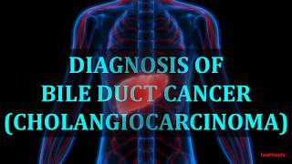 DIAGNOSIS OF BILE DUCT CANCER CHOLANGIOCARCINOMA