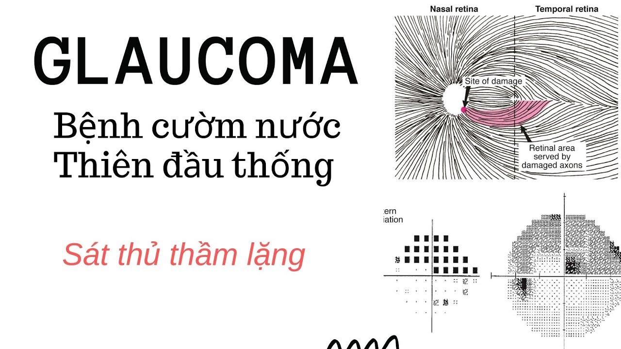 Vlog #35 – Bệnh glaucoma – Cườm nước – Thiên đầu thống- BS. Nguyễn Như Quân